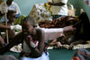 A girl with burn wounds look on as a nurse apply balm to the back of another girl suffering from burn wounds, Thursday, March 13, 2008 in the Kitale District Hospital in Western Kenya near the Ugandan border