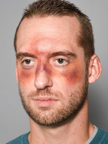 SFX, fight/bruise makeup