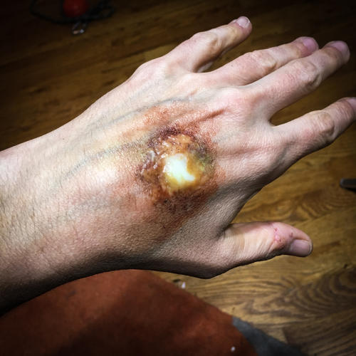 SFX, infection
