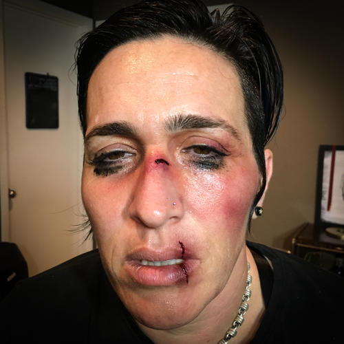 SFX, fight/bruise makeup, split lip, sweat