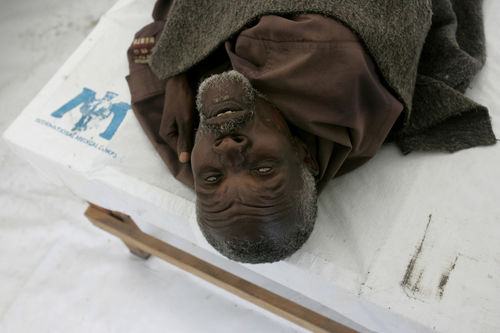 An old man get suffering from cholera get treatment at a Doctors without Borders clinic, Sunday, Nov. 9, 2008 in Kibati just north of Goma in eastern Congo