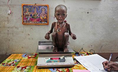 INDIA-MALNUTRITION/