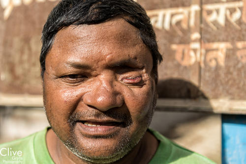 Local man who lost his eye to a tiger attack in the Bardia National Park