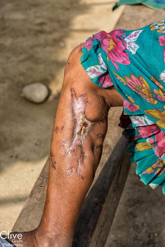 Leopard attack victim in the Bardia National Park