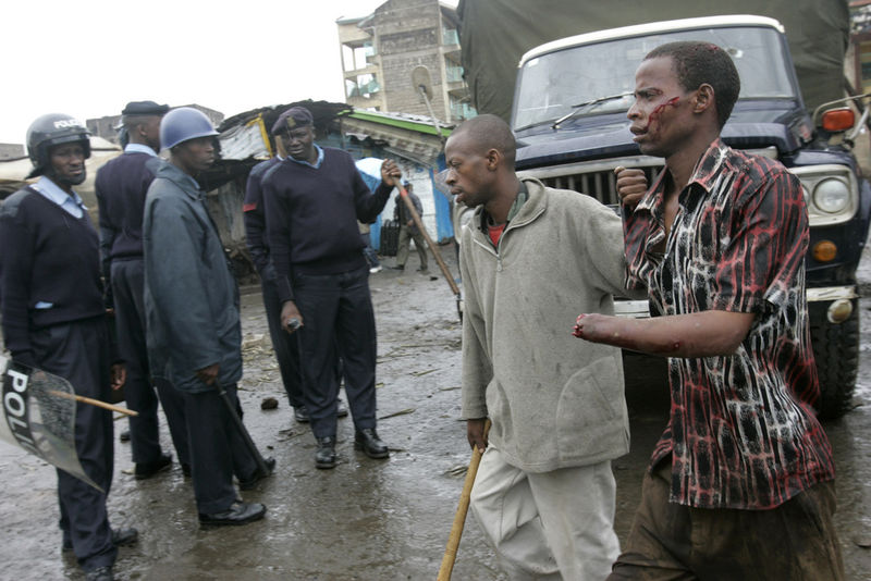 A man is escorted by a friend after he was attacked with machetes and his hand cut of , Sunday, Jan. 20, 2008 during ethnic fighting in the Mathare slum in Nairobi.