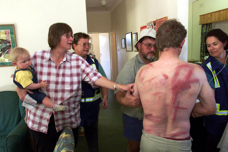 A Zimbabwean farmer arrive in hospital after he was brutally attacked by war veterans in 2000